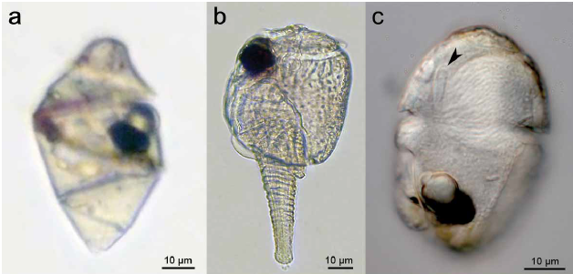 Figure 2. Light micrographs of three species of Warnowiids (a. Warnowia sp. b. Erythropsidinium sp. c. Nematodinium sp.) used in Gavelis et al.,'s study. Opaque black sports are the ocelloids.