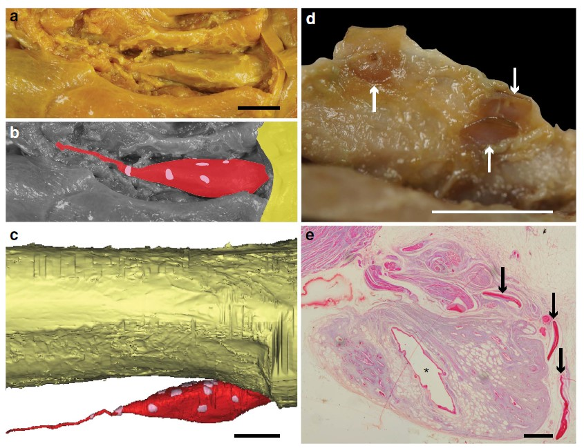 Fig. 4. Bony plates surround the lungs of adult coelacanths, fished 1953 and 1954. (a, b) The vestigial lung, with the head of the animal located to the right. The esophagus (yellow), vestigial lung (red), and hard plates (pink) are colour-coded. (c) 3D reconstruction of the esophagus, vestigial lung, and hard plates (colours as above). (d) Close-up of three hard plates in the sheath around the lung, indicated by arrows. (e) A stained microscope slide of the vestigial lung, with the hard plates indicated by arrows and the lung cavity indicted by an asterisk (*). Scale bars: 1 cm (a-c), 0.5 cm (d), 0.1 cm (e). Adapted from Cupello et al., 2015.