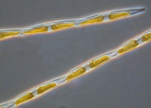 One of the suspects, the member of the genus Pseudo-nitzschia, produce the neurotoxin domoic acid [Wikimedia Commons]