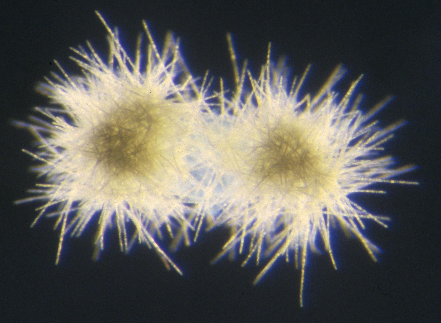 Fixin' to lose: Trichodesmium reacts to climate change